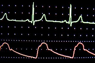 EKG Monitor ECG screen