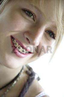 Zahnspange