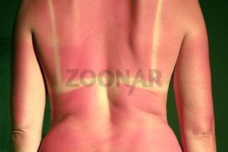 Back burnt after sunburn