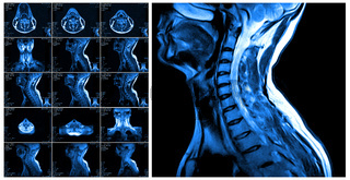 Magnetic resonance imaging of the cervical spine.