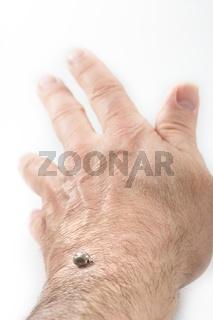Tick sucked blood on human skin
