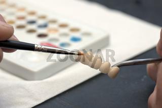 Keramikkronen einfärben
