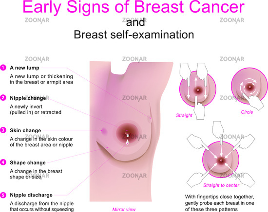 Photo Signs Of Breast Cancer Image 11543465