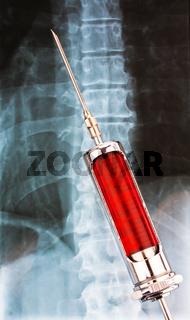 Injektionsnadel und Spritze mit Röntgenbild