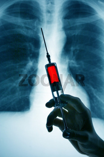 Lungenröntgen mit Spritze