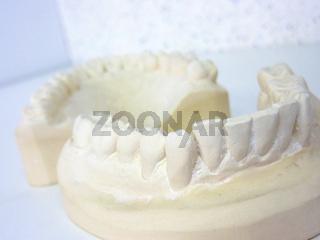 Two plaster teeth