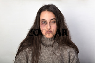 Abused woman the victim of domestic violence