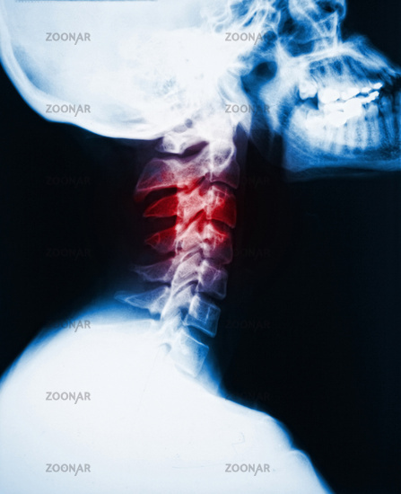 neck x-ray and pain