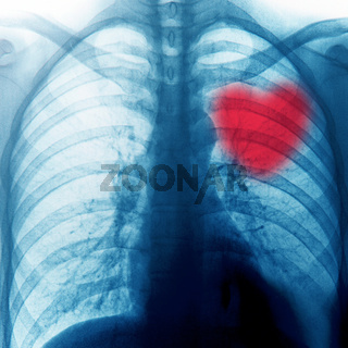 x-ray of chest
