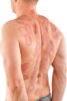 Suction cup marks on man's back.