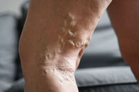 Varicose vein close up leg. Senior woman health problem. Foot with Diseased Veins. Health Care, Podiatry.