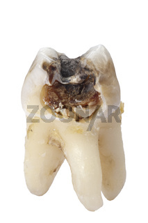 extracted tooth with cavity and caries