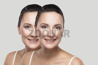 Before and after beauty skin wrinkles treatment procedure.
