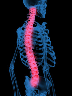 X-Ray of Human Spine