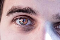 Dark circles around the eyes, close up picture, insomnia