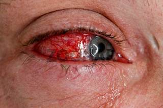 Augenverletzung - Nahaufnahme -