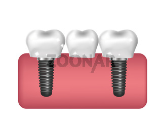 Dental implants, bridge construction, prosthetics 3D realistic style. Dentistry, healthy teeth concept. Vector illustration