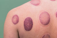 Vacuum treatment of the back. A man after a vacuum massage with cans. Hematomas on a wall closeup.