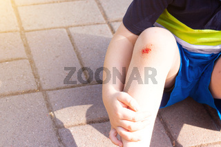 The wound on the child's leg . Fell on the road. Broken knee. Health. Article about the fall of a child. Article about the treatment of wounds. Bad leg . The child fell and broke his knee .