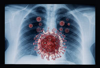 Coronavirus disease COVID-19 virus infection in human lungs