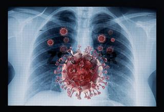 Coronavirus disease COVID-19 virus infection in human lungs