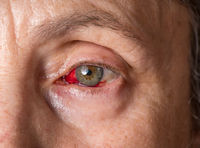 Close up of senior womans eye with conjunctivitis or pink eye around the iris