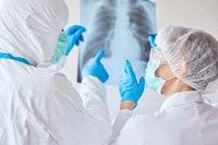 Ärzte mit Lungenentzündung auf Röntgenbild von Covid-19 Patient