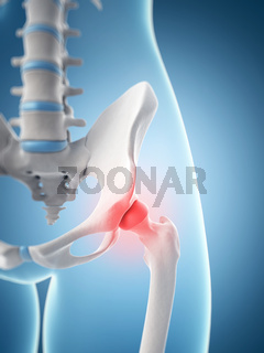 inflamed hip joint