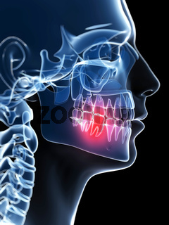 3d rendered illustration of a painful tooth