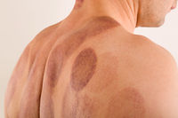 Cupping therapy marks on black