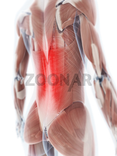 3d rendered illustration of a painful back