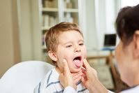 Kind mit Halsschmerzen zeigt die Zunge