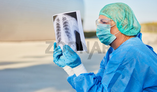 Arzt betrachtet Röntgenbild von Covid-19 Patient vor Klinik