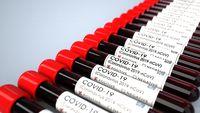 Positive Corona Test Tubes