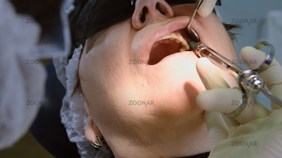 Senior woman getting dental implant