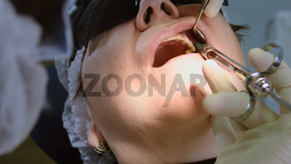 Senior woman getting dental implant