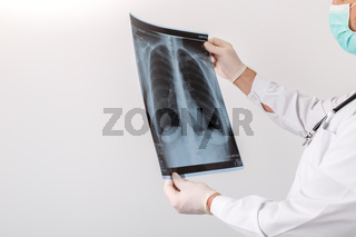 Doctor looking at chest x-ray