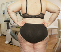 Overweight woman in treatment room at a doctor