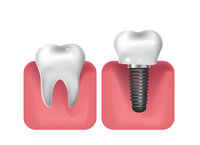 Dental implants, prosthetics 3D realistic style. Dentistry, healthy teeth concept. Vector illustration