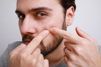 Handsome bearded young man touching his face and crushing pimple, skin care.