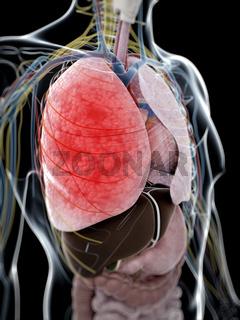 3d rendered illustration of pneumonia