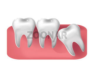 Wisdom tooth cut through, 3d realistic style. Dentistry, wisdom teeth extraction concept. Vector illustration