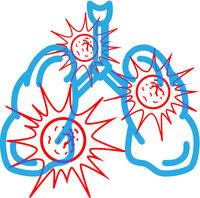 Human lungs full of dangerous red virus, modern illustration on white