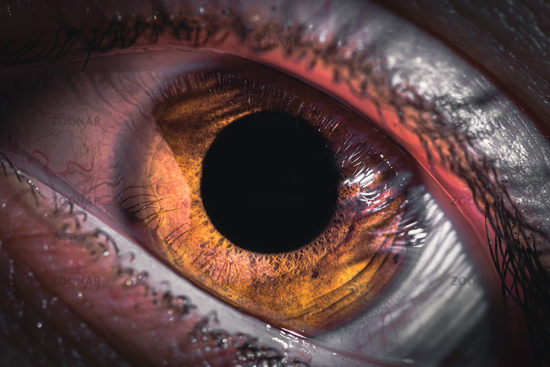 Extreme detail of human pupil or yey iris. Redness of the eyes in humans. Inflamed conjunctiva of the eyeball. Fury in the eyes of a man.