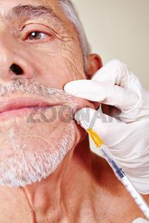 Alter Mann bei Schönheitsoperation in Schönheitsklinik