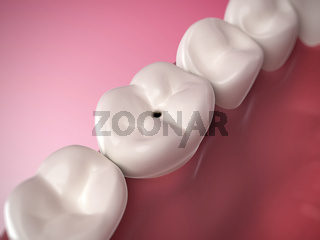 3d rendered illustration of tooth decay