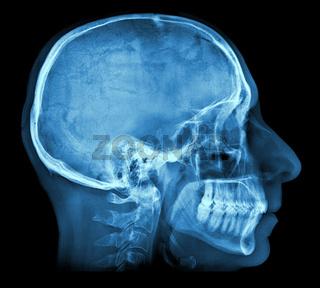 Human skull X-ray image