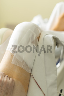 Knieoperation