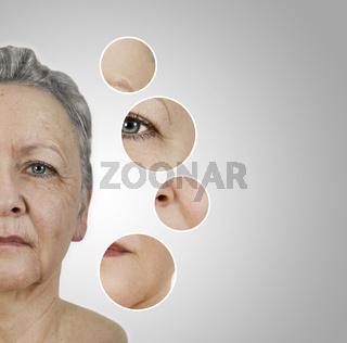 wrinkle smoothing