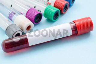 blood samples tube for screening test.